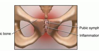 Osteitis Pubis – Presentation and Treatment