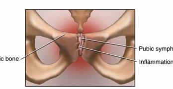 Osteitis Pubis – Presentation and Treatment