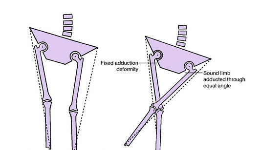 measurement of hip values in abduction adduction deformities