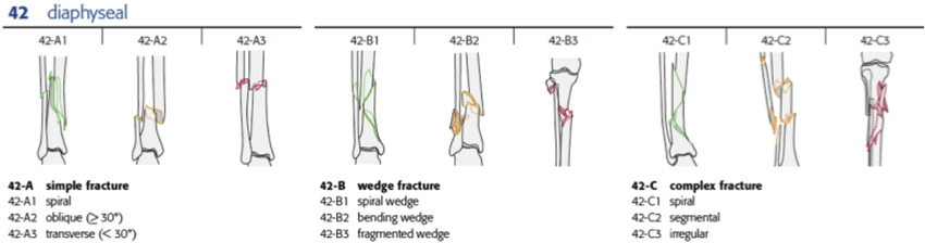 OTA classification of Tibial Shaft Fractures