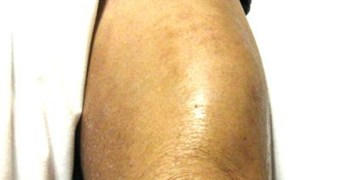 Infectious Myositis Causes and Treatment