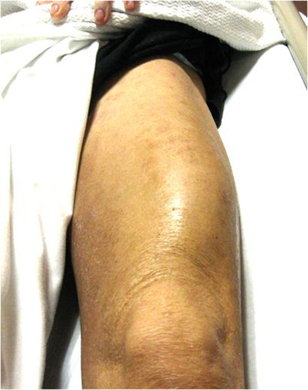 infectious myositis of quadriceps