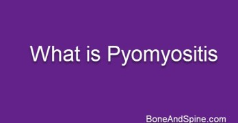 Pyomyositis or Muscle Abscess – Causes and Treatment