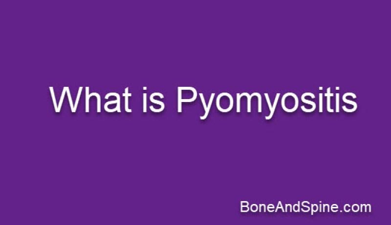 Gluteal pyomyositis