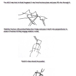 Tension Band Wiring Procedure