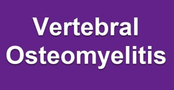 Pyogenic Vertebral osteomyelitis Presentation  and Treatment