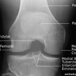 Intercondylar View of Knee