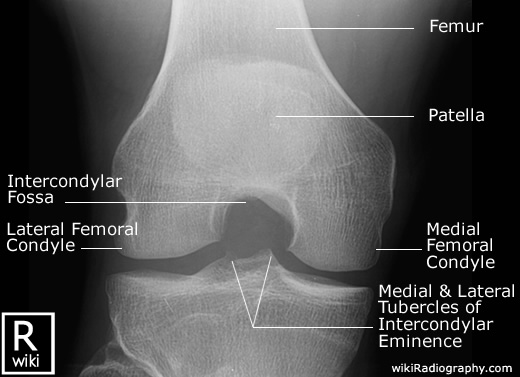 Intercondylar View of Knee