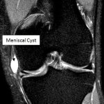 Meniscal Cysts Causes, Presentation and Treatment