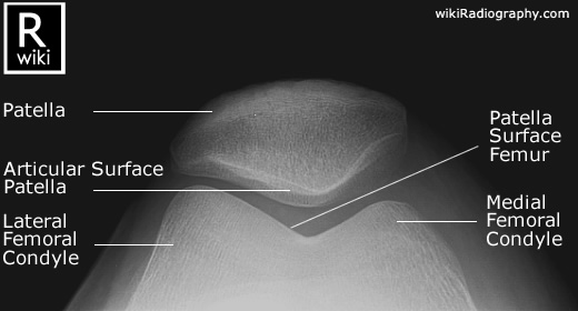 Normal knee x rays bone and spine skyline view of knee ccuart Images