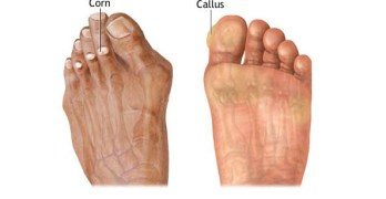 Corn and Callus – Causes Presentation and Treatment
