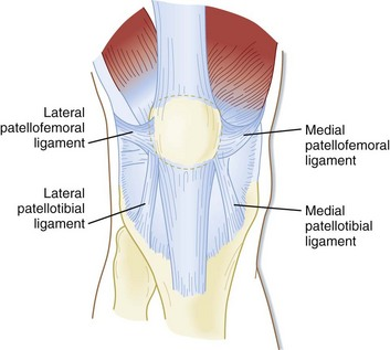 Patellofemoral joint stabilizers