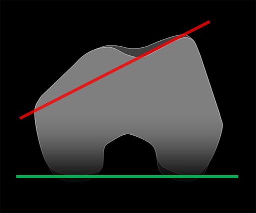 Trochlear Inclination Measurement