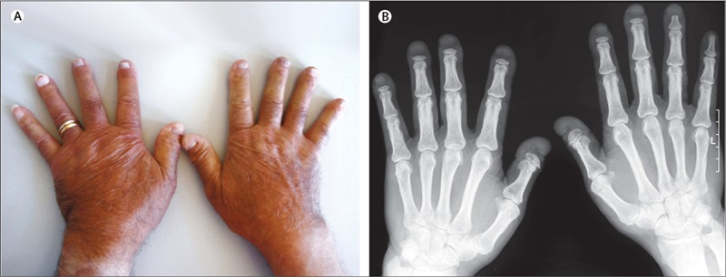 Acroosteolysis clinical image and x-rays