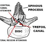 Spinal Stenosis – Causes, Types, Symptoms and Treatment