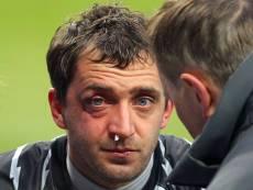 Из-за травм второго и третьего вратарей готовиться к матчу пришлось Андрею Диканю и вратарю «молодежки» Чернышуку