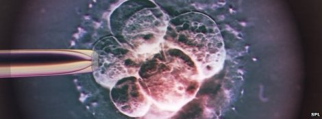 embryo,_light_micrograph-spl
