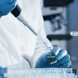 SIWES Report - Microbiology