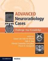 Advanced Neuroradiology Cases Challenge Your Knowledge PDF