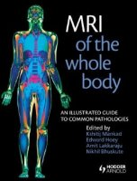 MRI of the Whole Body An Illustrated Guide for Common Pathologies PDF