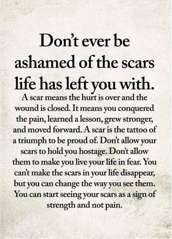 Perseverance quote on life. Do not ever be ashamed of the scars for which life has left you.