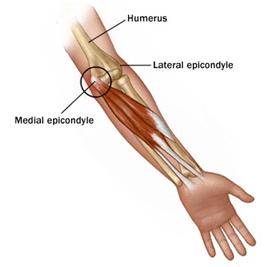 Elbow (3)