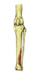 Shin Splints (1)