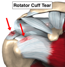 Injury, Rotator Cuff Tear