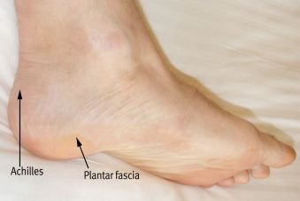 Figure 4: Surface anatomy showing comparative locations ('X') of Achilles heel pain & plantar fascia heel pain.