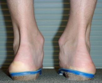 Figure 5: Custom-made orthotics.