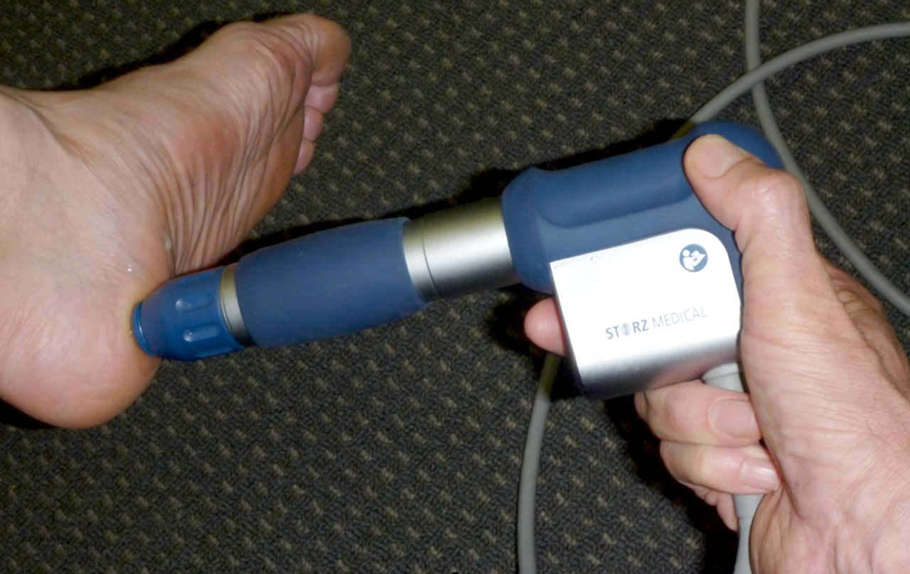 Figure 9: Extracorporeal shock wave therapy being applied to the plantar fascia.