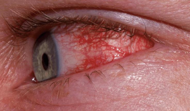 GEJALA: Mata merah menjadi gejala baru seseorang terpapar virus corona. (gambar: internet)