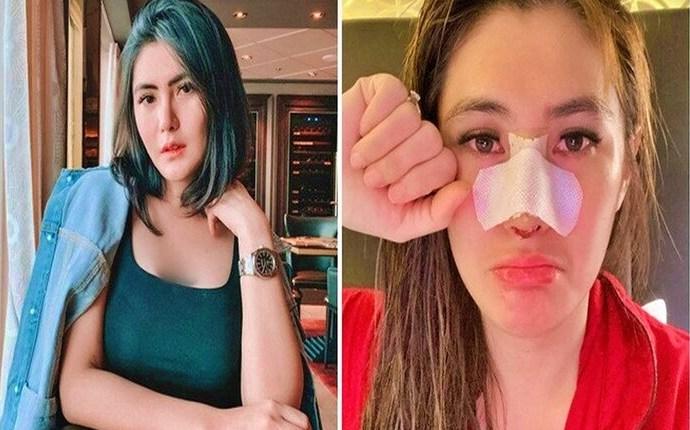 operasi hidung oleh artis anggela lee