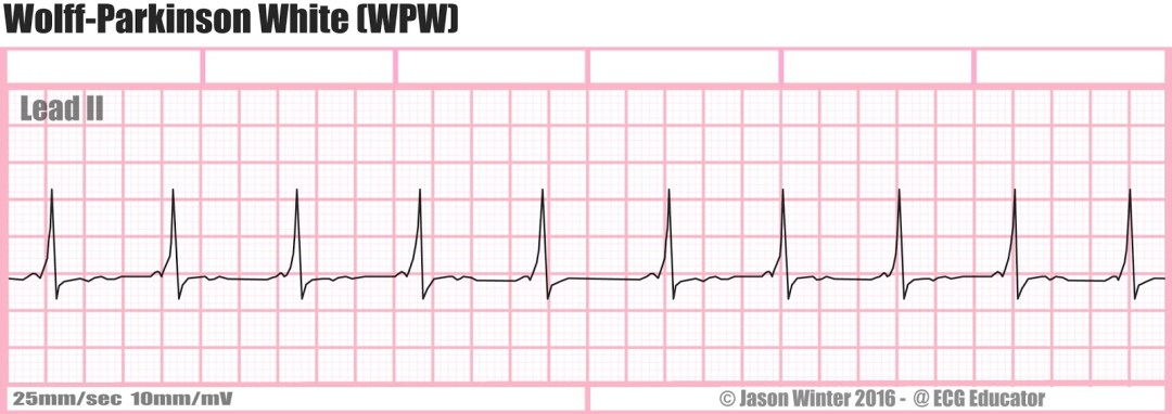Wolff-Parkinson-White Syndrome EKG