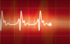 237_Cardiogram