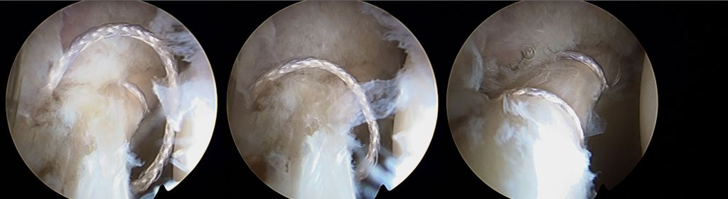 Acetabular Labral Repair
