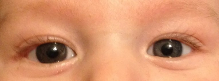 Munchkin's right eye (left in photo) is brown, while his left eye is a cloudy, grayish blue.