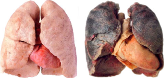 Anything that does this to an adult's lungs will surely bring damage to an infant's body.