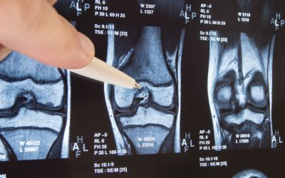 9/6/19 SHR # 2397 :Treating Osteoarthritis – Beyond Stem Cells & PRP