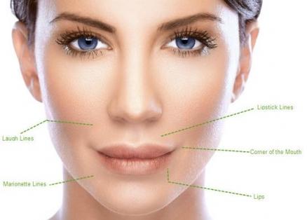 Υαλουρονικό οξύ: Θεραπείες ρυτίδων
