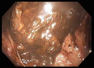 inadequate bowel prep