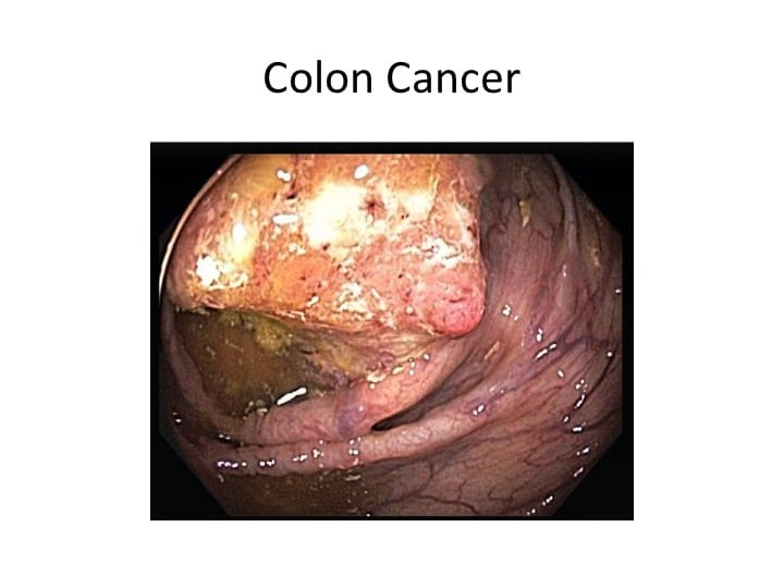 10 Signs And Symptoms Of Colorectal Cancer Bowelprepguide