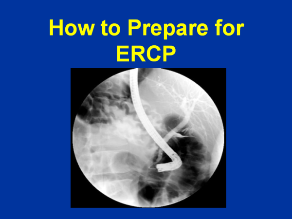 how to prepare for ERCP