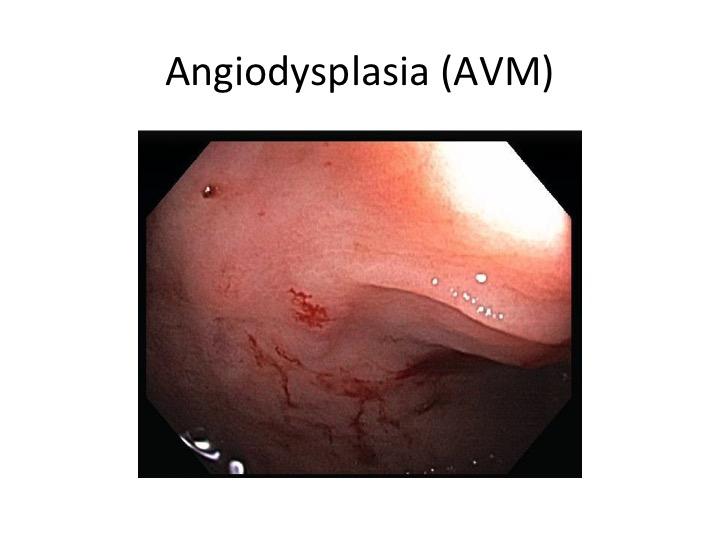 Angiodysplasia (AVM)