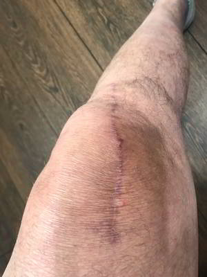 Total Knee Replacement Recovery