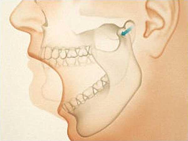 Ушиб челюсти после удара симптомы последствия и что делать