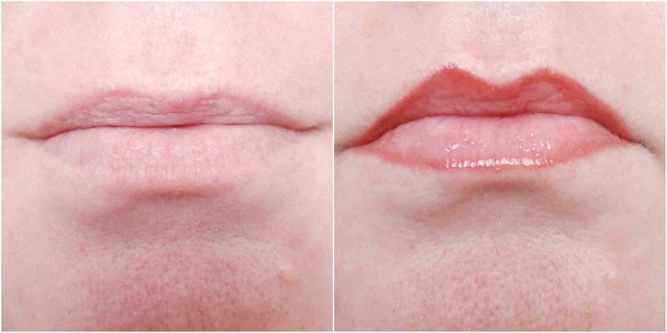 My lips before and after applying the lip liner and lip plumper.