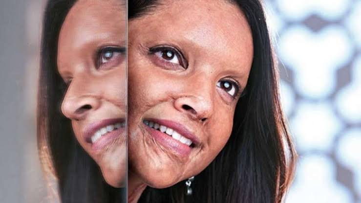 CHHAPAAK Trailer Out! Deepika Padukone Is Set To Inspire One & All