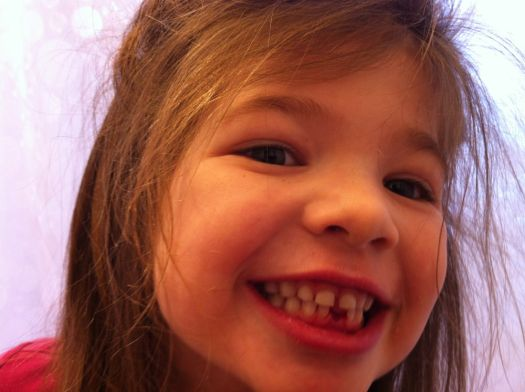 Missing her first tooth.