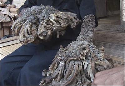 Papilloma virus uomo albero